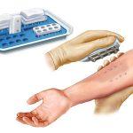 skin prick test 150x150 - Pruebas de alergia