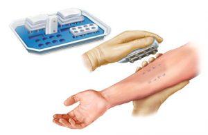 skin prick test 300x196 - skin-prick-test